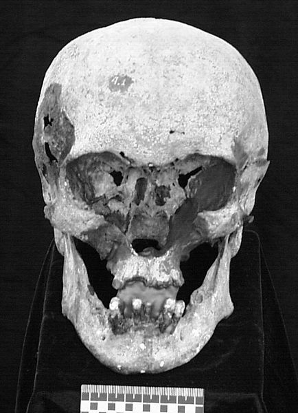Nicholas II skull, his nose and cheeks were totally destroyed